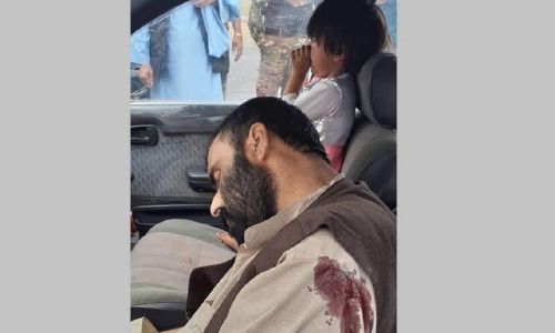Man Shot Dead in Broad Daylight, In Front of His Infant Daughter in Kandahar