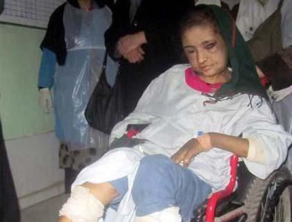 [Terbakor Dunia] Gambar Sahar Gul gadis 15 tahun didera dan dipaksa jadi pelacur oleh keluarga suami